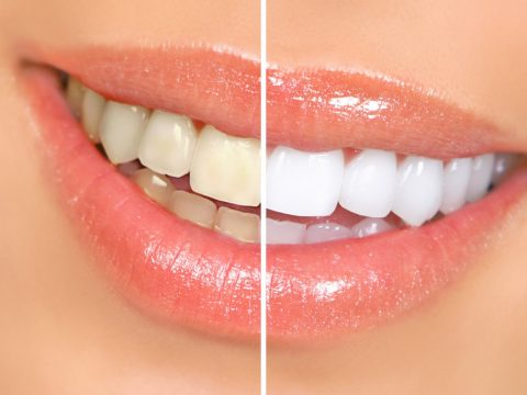 Teeth Whitening from a dentist