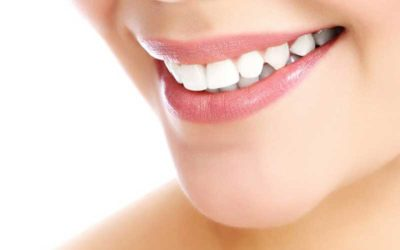 How to Prevent Teeth Staining