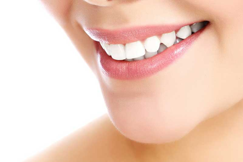 teeth staining teeth whitening Scottsdale