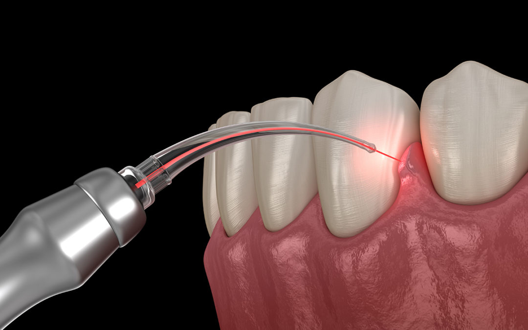 How Effective Is Laser Periodontal Therapy?