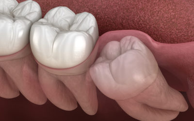A Guide to Recovery After Wisdom Teeth Removal