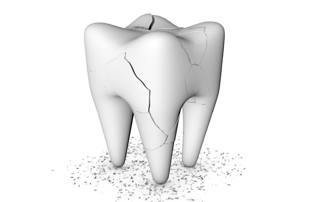 6 Surprising Causes Of Tooth Damage