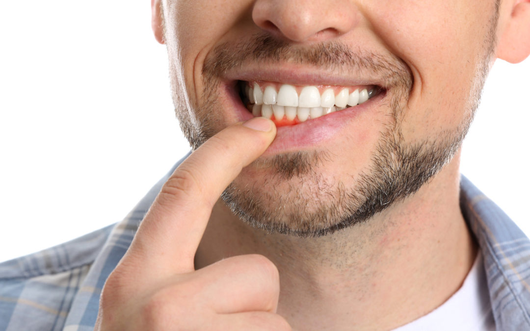 How to Prevent Gum Disease: 7 Tips for Good Oral Health